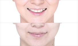 Before After, using Lipstick on moutth lip by gloss and sharpen Stock Photography