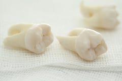 Usuwający mądrość ząb na bielu fotografia royalty free