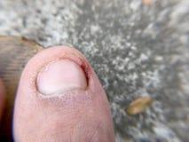 Uszkadzający toenail obrazy stock