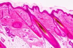 Utbildningsanatomi och livsfunktioner av människan skalperar show av hårfolticles under det mikroskopiskt royaltyfria foton