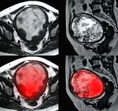 Uterine malignant tumor, MRI image. B & W images as well as colored images with enhanced tumor lesion Royalty Free Stock Photography