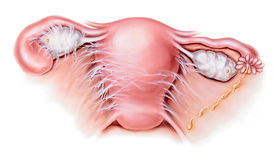 Utero - malattia infiammatoria pelvica PID illustrazione vettoriale