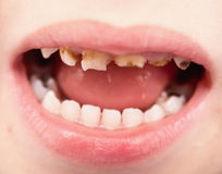 Uthealthy teeth Royalty Free Stock Images