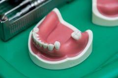 utrustningen av tandläkekonstomsorg Arkivfoton
