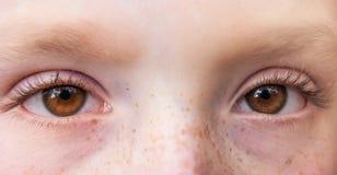 Uttrycksfull ögoncloseup av en ung flicka med freckles_ royaltyfria bilder
