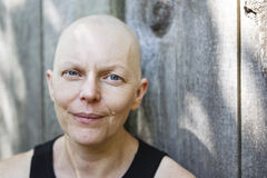 Utvändig stående av att bli skallig kvinnan med bröstcancer Fotografering för Bildbyråer