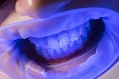 UV λευκαίνοντας δόντια Διαχειριστείτε τα αναισθητικά για να κρατήσετε τους ασθενείς από το αίσθημα του πόνου κατά τη διάρκεια των στοκ εικόνα