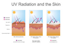 UV radiation and the skin. Effects the elastin in the skin and leads to wrinkles. Health care education infographic. Vector design Stock Image