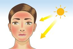 UV ray from sun made the redness appear on woman facial and neck skin. Illustration about danger of Ultraviolet Stock Images
