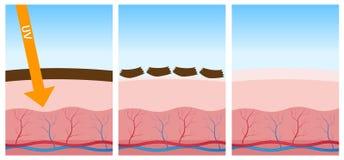UV- und tote Haut vektor abbildung