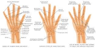 Vários tipos de fraturas da mão Ilustração Stock