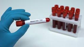 Västra fläck, doktor som visar blodprövkopian i röret, labbforskning, vård- kontroll-upp stock video