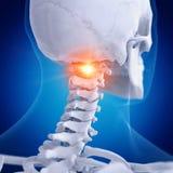Vértebras de atlas dolorosas ilustração stock
