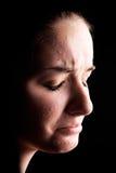 Víctima femenina deprimida del acné Imagenes de archivo
