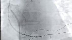 Vídeo de la radiografía del corazón metrajes