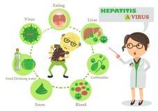 Vírus da hepatite A ilustração royalty free