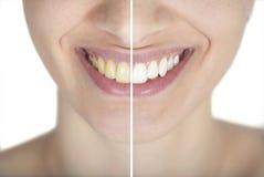 Vóór en na het bleken stock foto