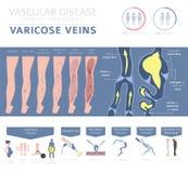 Vaatziekten Spataderssymptomen, de reeks van het behandelingspictogram vector illustratie
