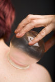 Vacuum cupping on shoulder Stock Photos