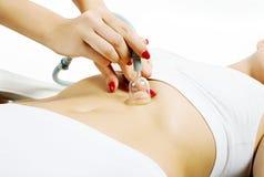 Vacuum slimming massage Royalty Free Stock Photos