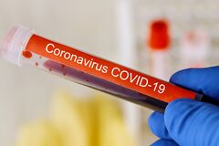 Vacuum tubes coronavirus COVID-19 for Medical working with blood sample in laboratory