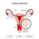Vaginal infection and causative agents of vulvovaginitis. Vaginitis is an inflammation of the vagina. vaginal infection and causative agents of vulvovaginitis vector illustration