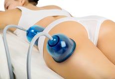 Vakuum, das Massage abnimmt Stockfoto