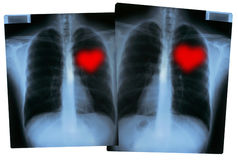 Valentines X-Rays - Love hearts Royalty Free Stock Image