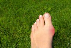 Valgus de Hallux, oignon chez le pied de la femme sur le fond d'herbe photos stock