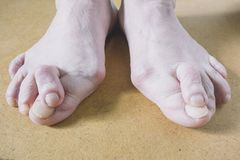 Valgus Deformity of Female Leg Due Hallux Valgus and Weakness of Ligaments royalty free stock photography