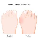 Valgus do abducto de Hallux junção saudável e bunion ilustração stock