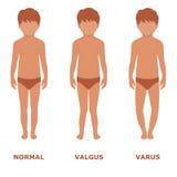 Valgus, Varus-Knie, lizenzfreie abbildung