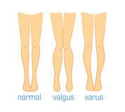 Valgus varus and normal Stock Photo