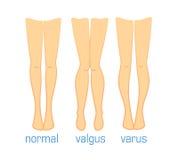 Valgus varus and normal. Vector medical illustration types of curvatures human feet. Plastic surgery, treatment diseases leg bones, toe alignment valgus varus royalty free illustration