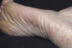 Valk och hyperkeratosis på fot, closeup, torkad hud royaltyfri bild