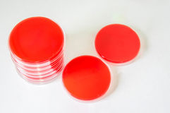Van de bloedagar-agar (BEDELAARS) de platen Royalty-vrije Stock Fotografie