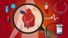 Van de de menselijke gezondhedencardiologie van de hartkwaalaanval het cardiovasculaire pictogram royalty-vrije illustratie