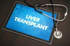 Van de levertransplantatie (verwante leverziekte) medische de diagnose Royalty-vrije Stock Foto