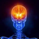Van het de hersenen het medische aftasten van de röntgenstraal vooraanzicht Stock Foto