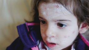 Van het het voorhoofdkind van de huidvoorwaarde van de het antihistaminicumzalf het gezichtswaterpokken stock video