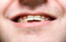 Varón con las paréntesis que desgastan y la sonrisa del overbite Fotografía de archivo libre de regalías