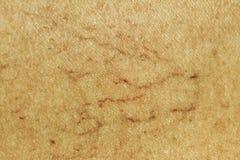 Varices en la pierna. Macro Fotos de archivo