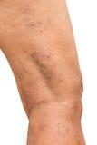 Varices en las piernas de mujeres de mediana edad Fotos de archivo