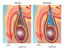 Varicocele Royalty Free Stock Photos