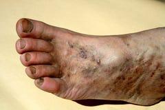 Varicose вены затромбирование нога Расширение вен на ноге стоковое фото rf