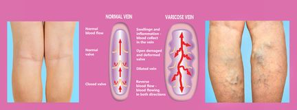 Varicose вены на женские старшие ноги Структура нормальных и varicose вен стоковые фотографии rf