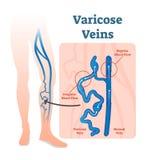 Varicose вены с скачками потоком крови и здоровые вены vector схема диаграммы иллюстрации бесплатная иллюстрация