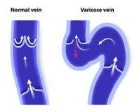 Нормальная вена и varicose вена Стоковое фото RF