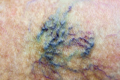 Varicose vain. Varicose vein. Macro. Spider vein royalty free stock photo