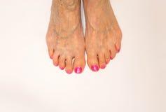 Varicose vein. Macro. The female legs isolated on white. Senior woman stock photo